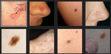 Warning Signs Of Skin Cancer Dca Cancer